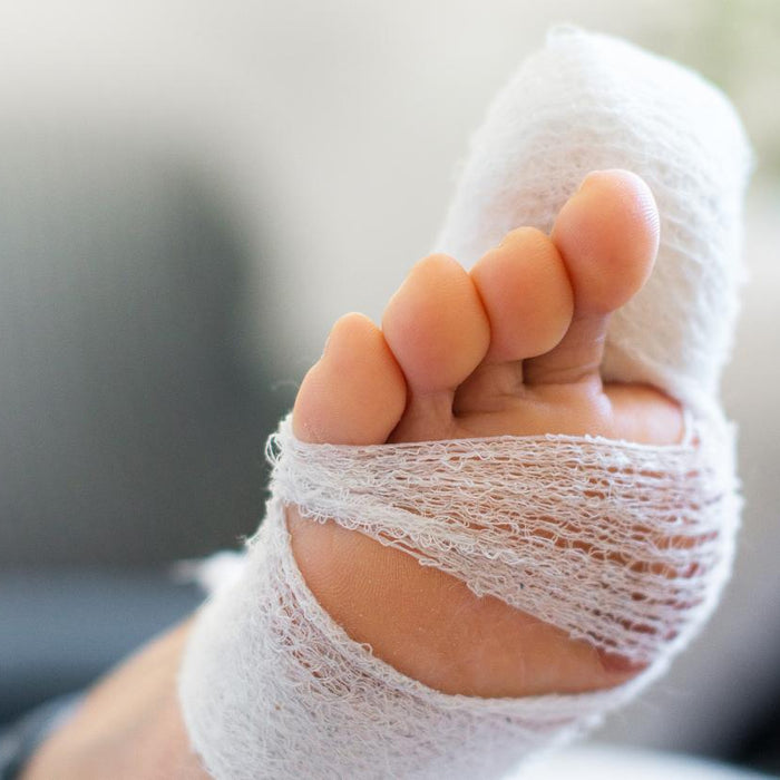 WHY DOES STUBBING YOUR TOE HURT SO MUCH?