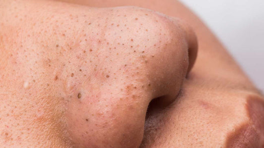 Blackheads - Causes and Treatments