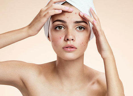 Acne, it's more than just hormones
