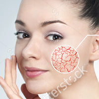 The Blood Vessels of Your Skin
