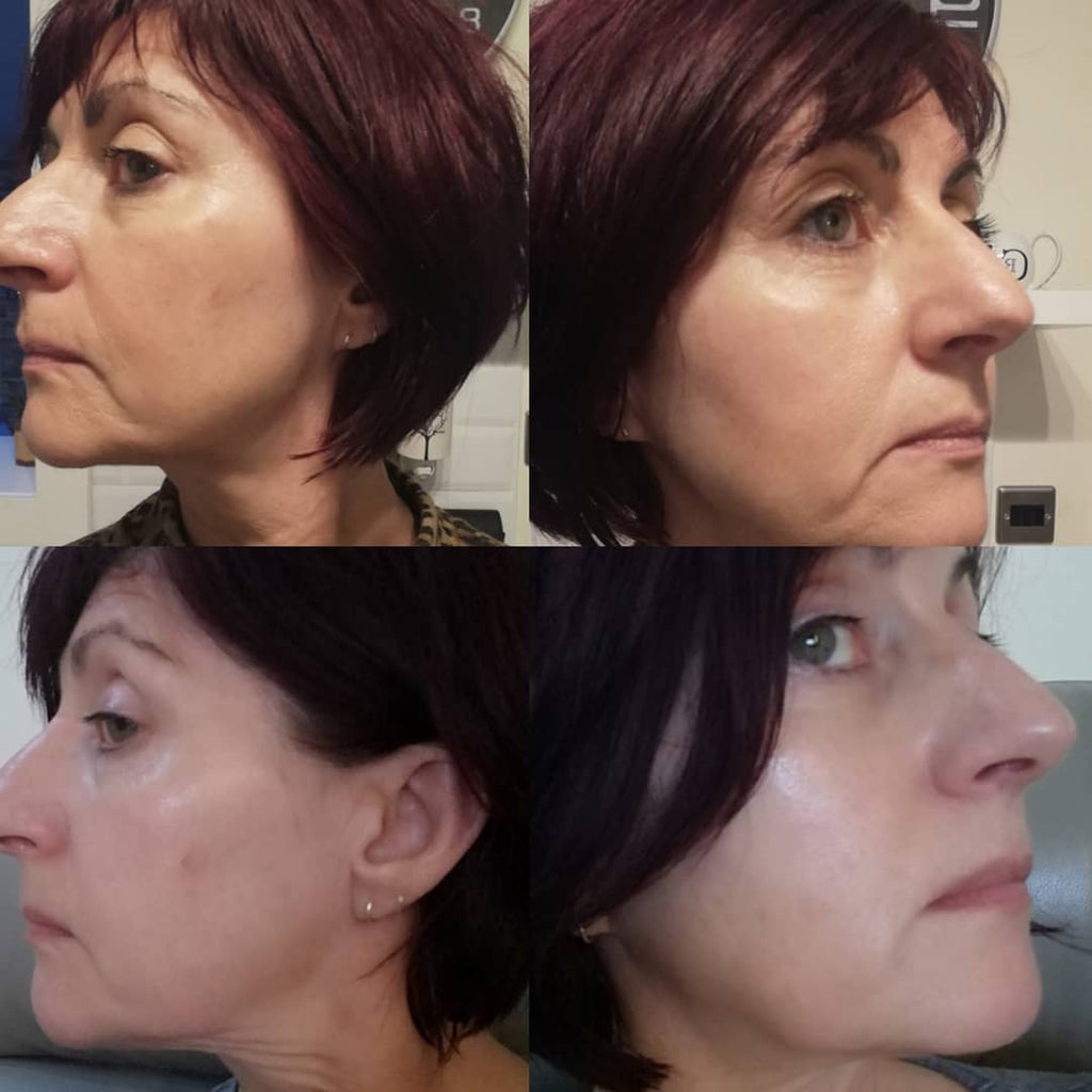Magnitone Lift Off Microcurrent Facial Toning Device Before And After Pictures Does It Really Work?