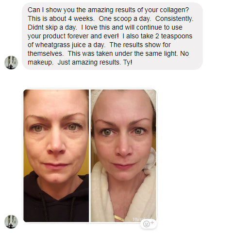 shelly collagen story
