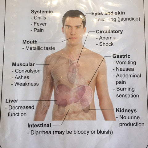 Symptoms of copper poisoning