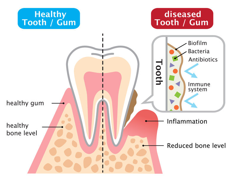 diseased tooth and gum and healthy tooth and gum