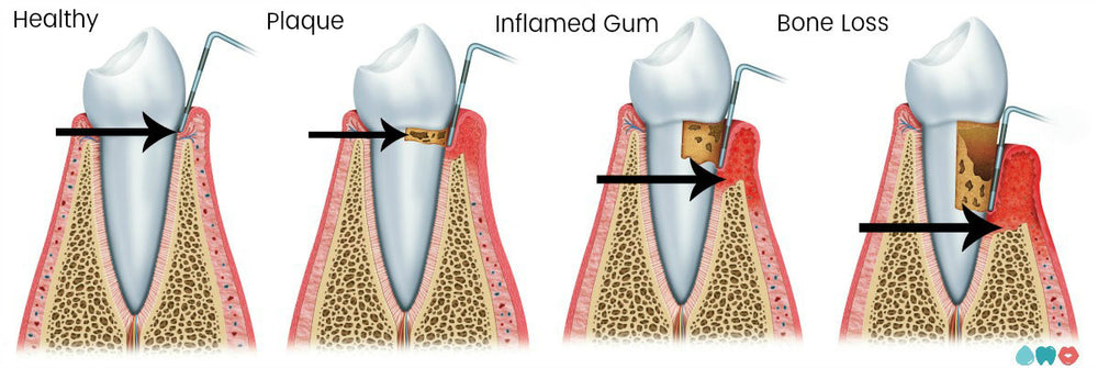 Gum Pockets: Causes and Cures