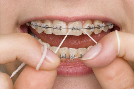 Water Flossing and Orthodontics