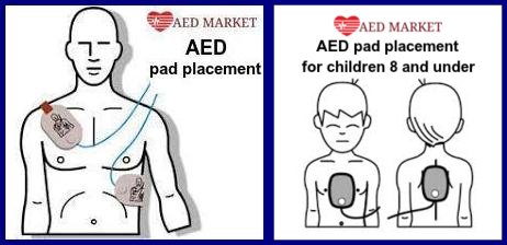 Proper AED Pad Placement