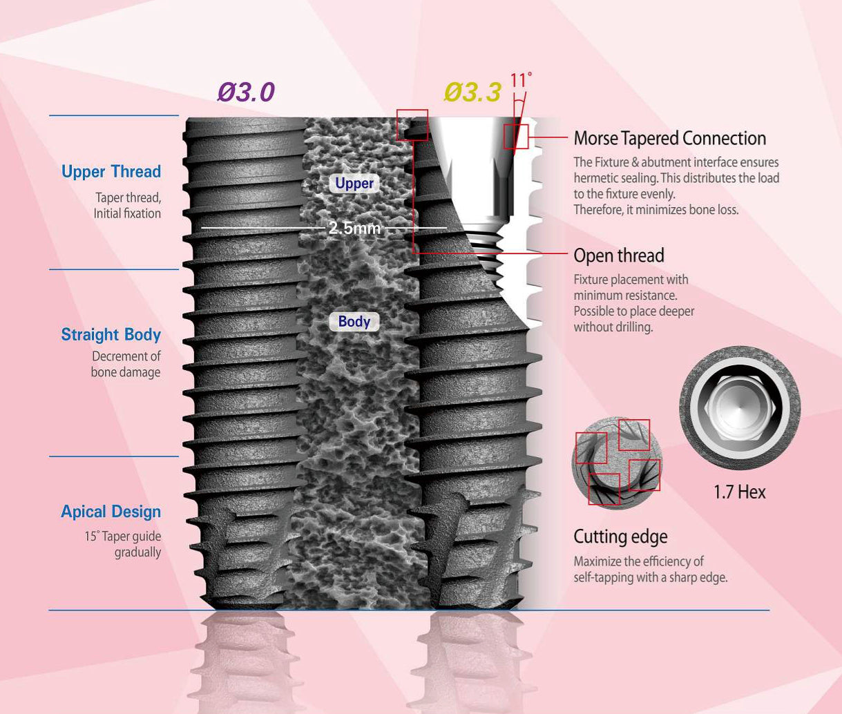 UF(II) Narrow Submerged Dental Implant System - HSA SUrface