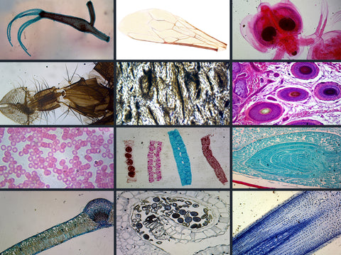 Biology Microscope Slide Set – 23 Slides