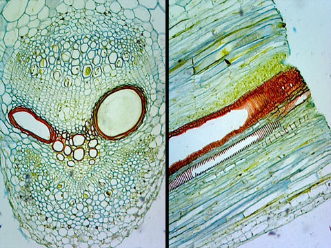 Pumpkin (Cucurbita) Stem; Typical Dicot Stem; Cross Section and Longitudinal Section
