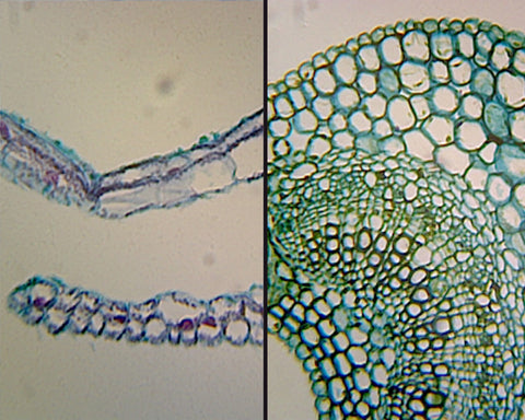 Angiosperm Leaf; Air (Ligustrum) and Water (Elodea) Plant Comparison; Cross Section