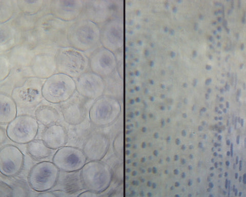 Ascaris and Onion Mitosis; Section