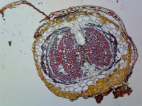 Pine (Gymnosperms) Young Root; Cross Section