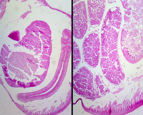 Ascaris Lumbricoides, Male and Female; Cross Section