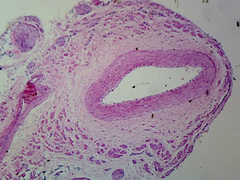 Medium-Sized Artery and Vein, Mammalian; Cross Section