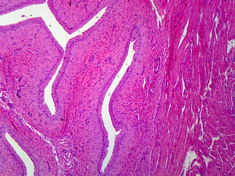 Transitional Epithelium, Mammalian; Stratified Cuboidal Epithelium from Urinary Bladder; Section