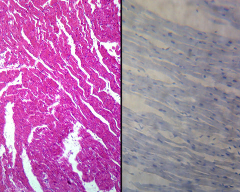 Cardiac Muscle, Mammalian; Cross Section and Longitudinal Sections