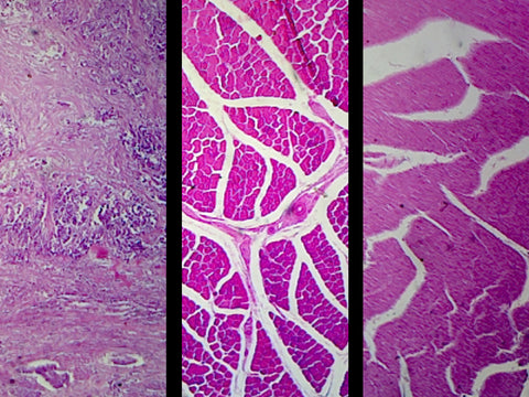 Mammalian Muscle Types Composite; Showing Smooth, Cardiac, and Skeletal Muscle; Section; H&E Stain