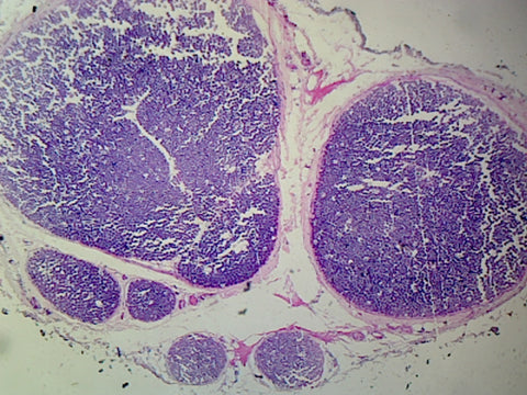 Myelinated Peripheral Nerve, Human; Cross Section
