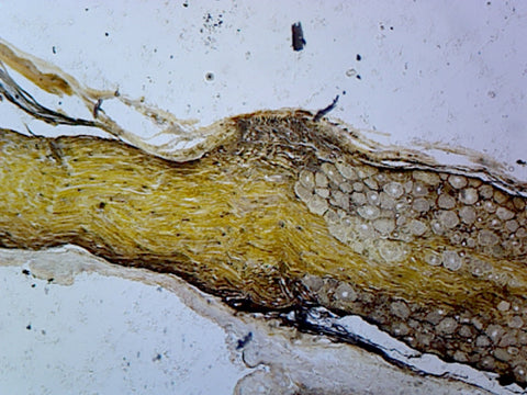 Golgi Complex from Spinal Ganglion, Mammalian; Section