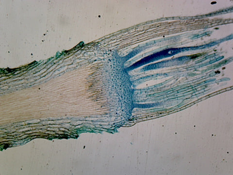 Moss Antheridia; Longitudinal Section