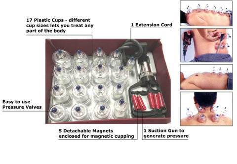 suction cupping set 17