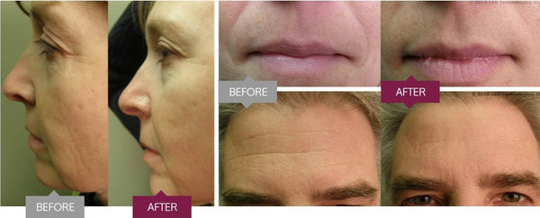 Revive Light Anti-aging Therapy