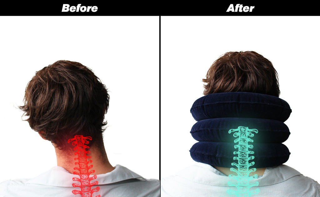 neck alignment before and after