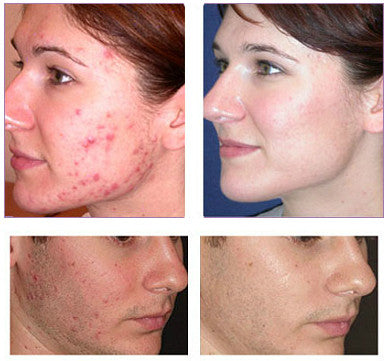 acne care before and after