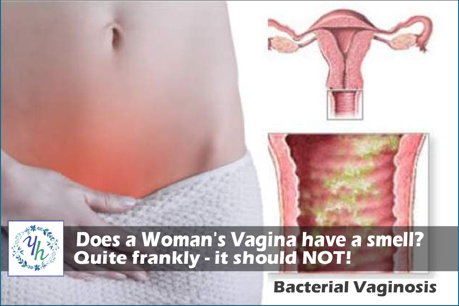 Does a Woman's Vagina have a smell? Quite frankly - it should NOT!