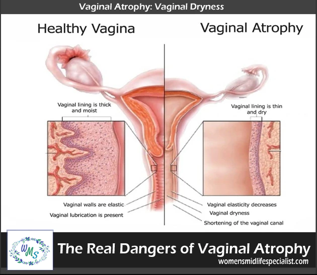 Real Dangers of Vaginal Atrophy
