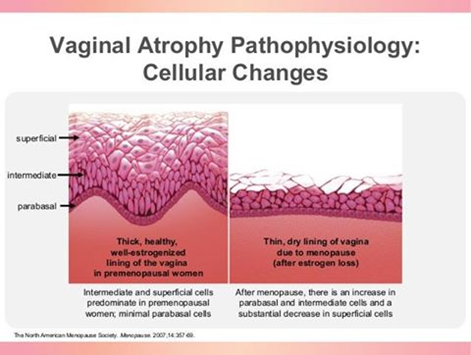 Cellular changes associated with vaginal atrophy