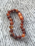 Baltic amber teething anklet