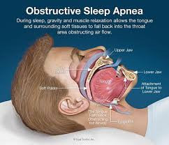 Sleep Apnoea Is More Than Just Extreme Snoring