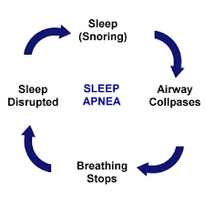 The Different Types Of Sleep Apnea - Obstructive, Central And Mixed.