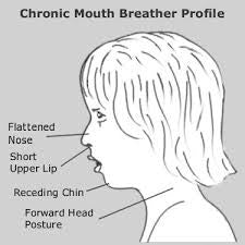 Mouth Breathing Can Change The Shape Of Your Child's Face