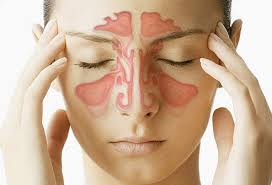Why Do I Wake Up With A Stuffy Nose And Sinus Pressure? Video
