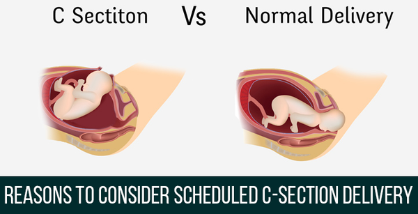 Reasons to consider SCHEDULED C-Section delivery 2018