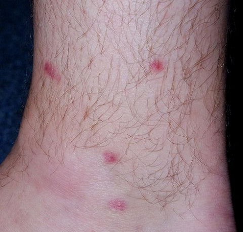 Chlorine Rash And Swimmer's Itch: Cause, Treatment And