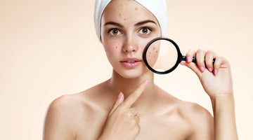 Acne Causes &  Natural Home Remedies For Acne