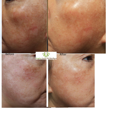 Fraxel Laser Treatment for Scars, Wrinkles And Skin Pigmentation