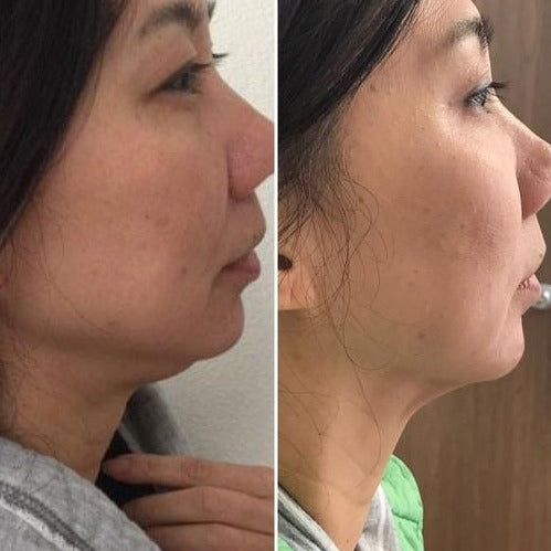 Double Chin-Injectables-Skin Perfect Brothers