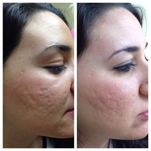 Face Rejuvenation, Acne Scars, Pores ,and Wrinkles / 3 Micropen-Injectables-Skin Perfect Brothers