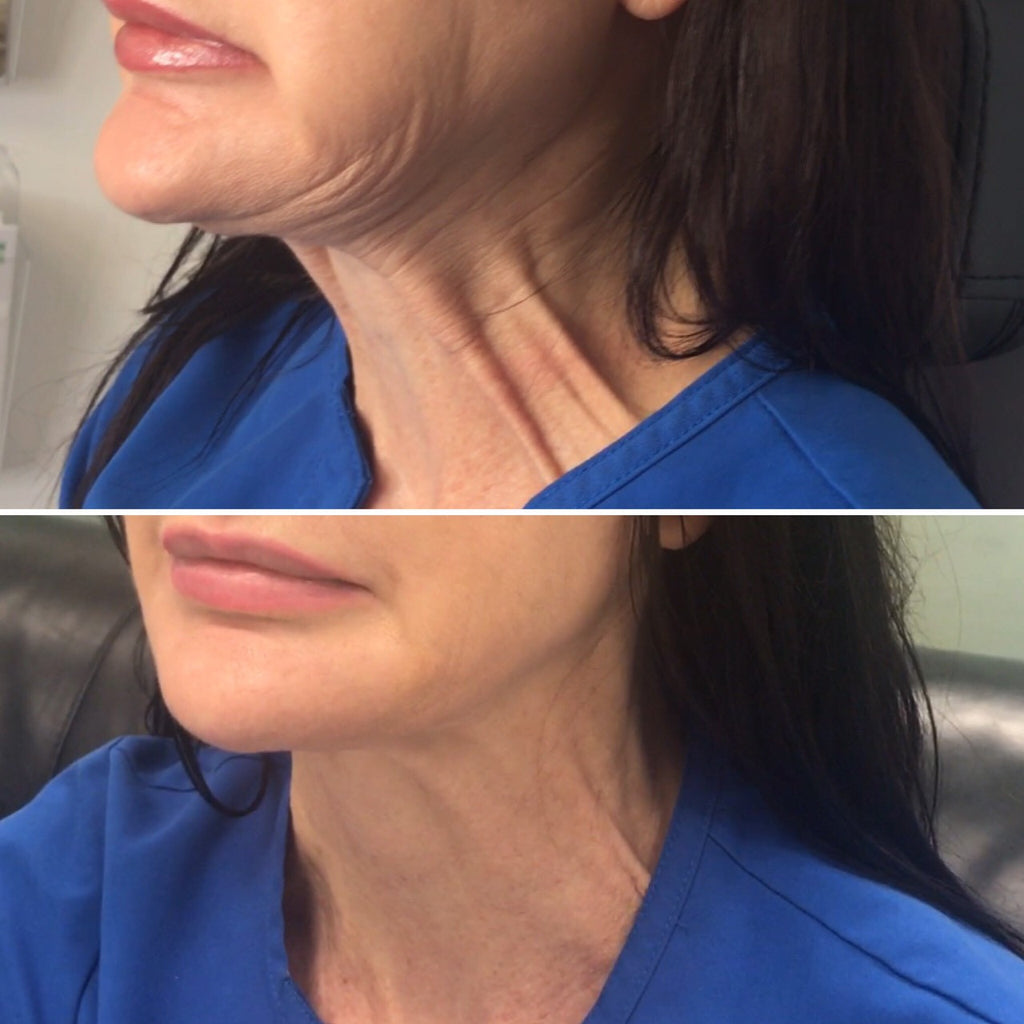 Neck Lift with Botox-Injectables-Skin Perfect Brothers