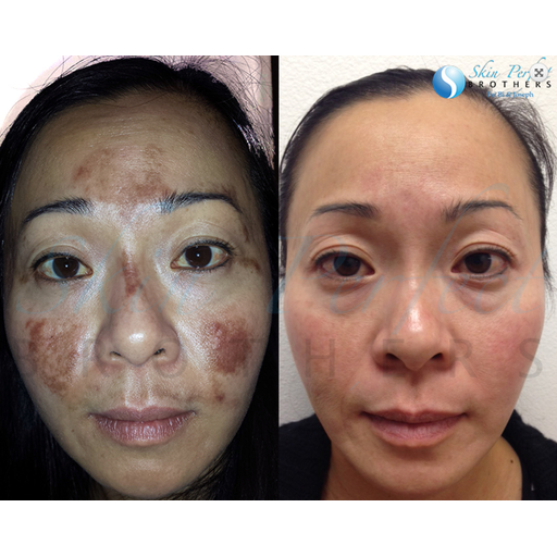 Melasma / 6 Spectra-Lasers-Skin Perfect Brothers