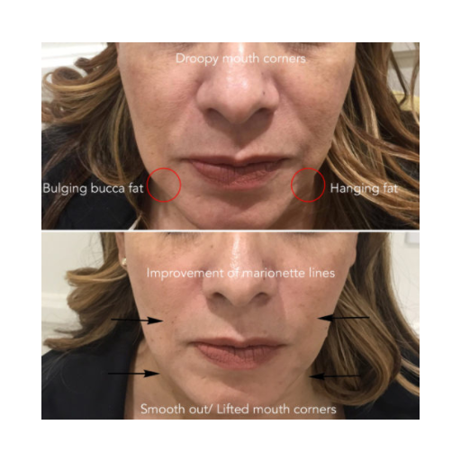 V-Line Power Lift ( Restylane, Radiesse, Juvederm, Belotero ) / Last up to 6 Months-Injectables-Skin Perfect Brothers