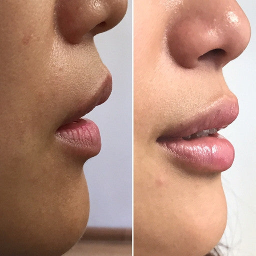 Lip Enhancement Augmentation-Injectables-Skin Perfect Brothers