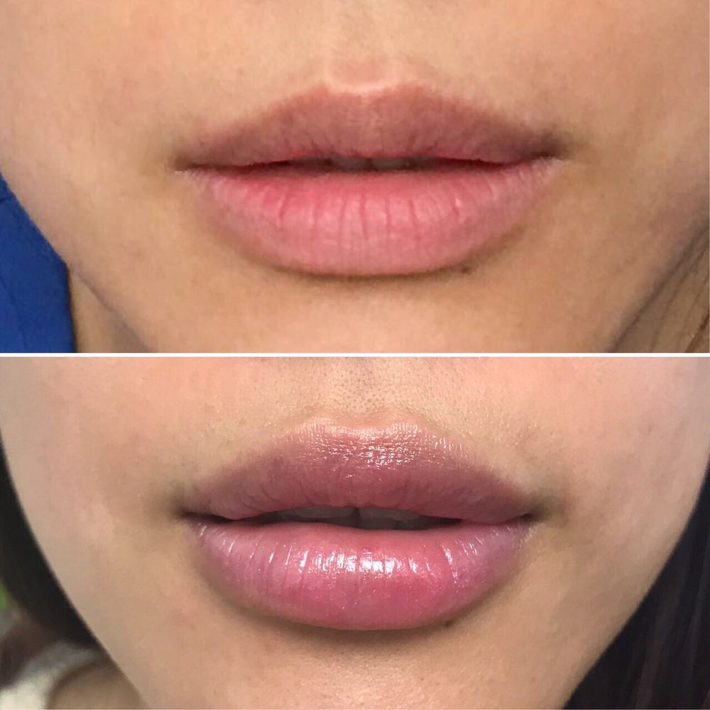 Lip Enhancement Augmentation SALE