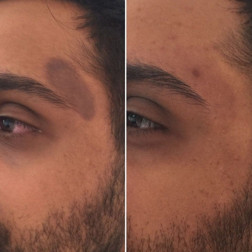 Acne Blemishes & Burn Pigmented Scars / PIH-Lasers-Skin Perfect Brothers