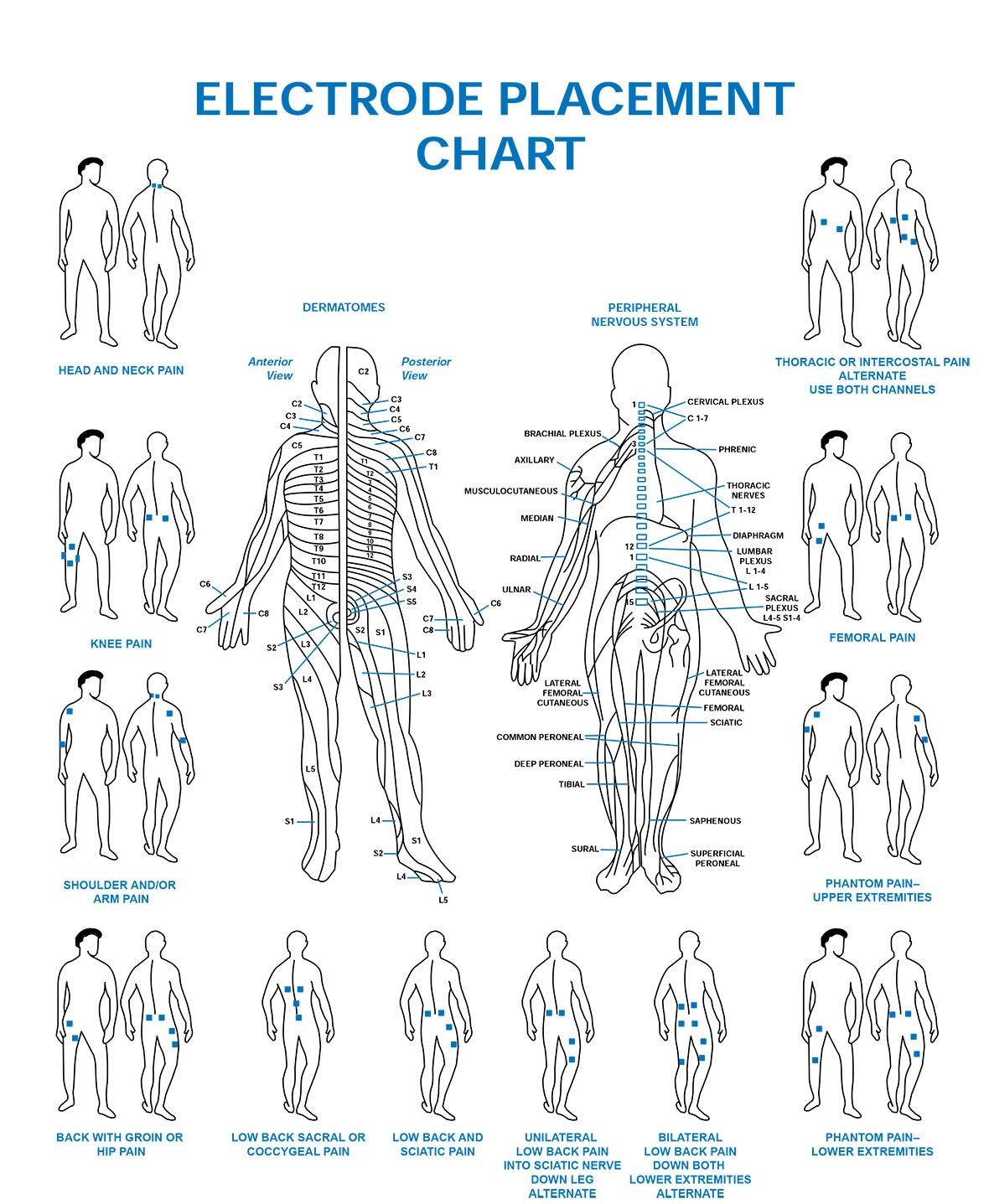 Electrode placement chart esa medical